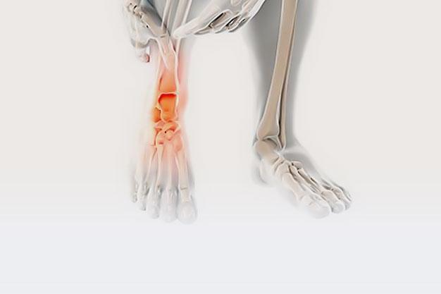 boka és lábműtét