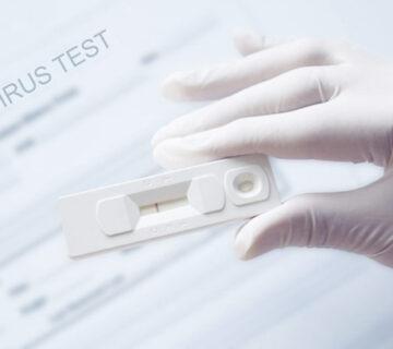 PCR eredmény