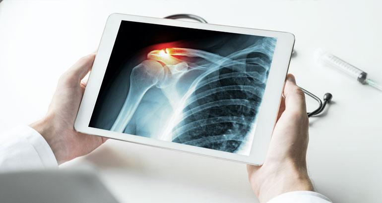 digitális röntgenvizsgálatok